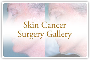 Skin Cancer Surgery Gallery