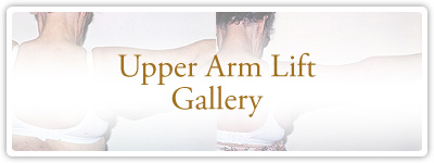 Upper Arm Lift Gallery